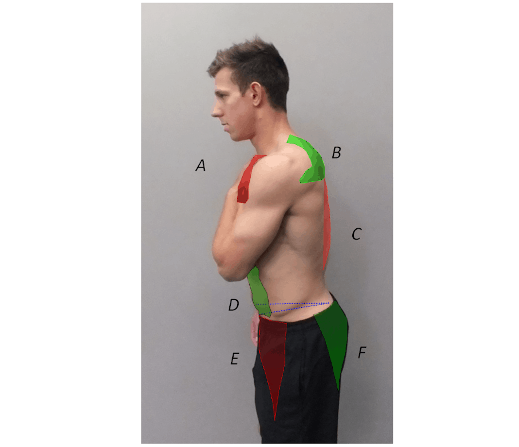 Man's profile with green tape on stomach and shoulder blades, and red tape on chest and middle back.
